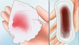 Bà bầu ra huyết hồng nhưng không đau bụng có nguy hiểm không?